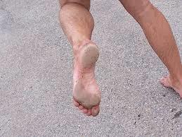 Blote voeten en eelt